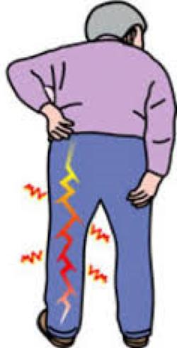 「坐骨神経痛」の画像検索結果