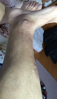 金属アレルギー治療後