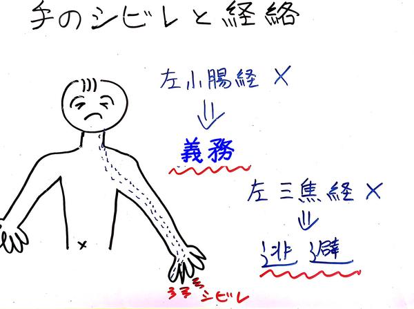 手根管症候群1