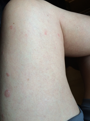 コリン性蕁麻疹左大腿2回治療後