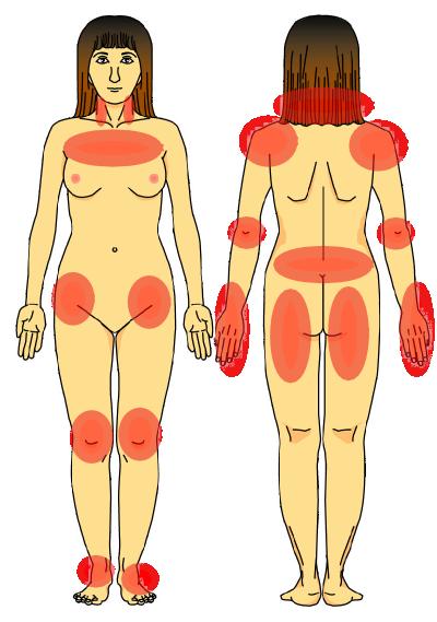 リウマチ様線維筋痛症