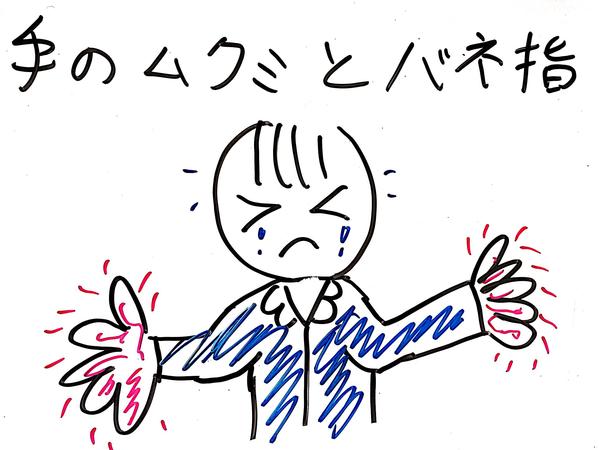 手のむくみ
