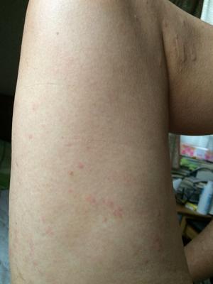 コリン性蕁麻疹左大腿治療後