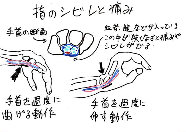 手根管症候群2