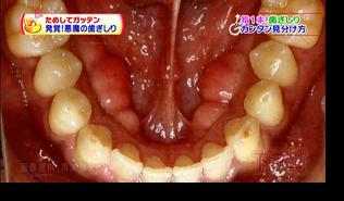 歯茎の変形