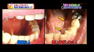 健康な歯茎と不健康な歯茎